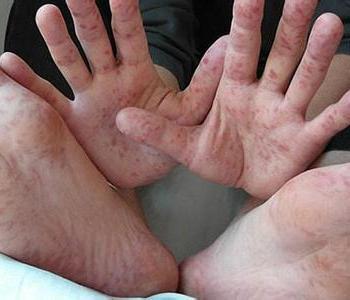 手足口病的症状有哪些