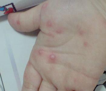 手足口病的分类