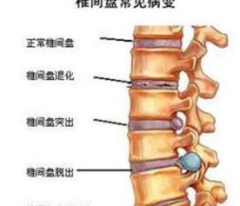 腰椎病微创手术治疗