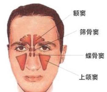 鼻内窥镜是怎么样治疗鼻息肉的呢