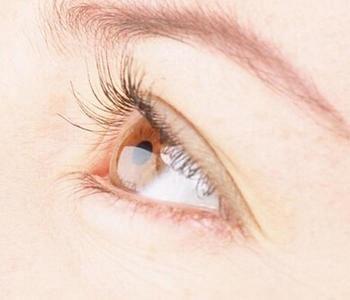 眼睛肌无力怎么治疗