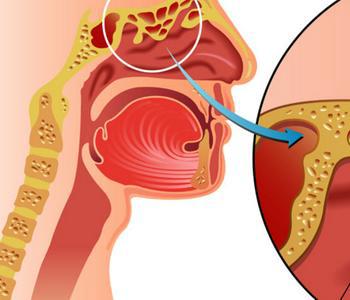 慢性支气管炎该怎么治疗好