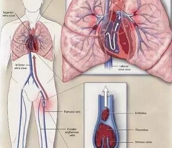 肺栓塞治疗指南有哪些