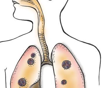 肺部怎样排毒呢