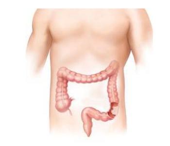 直肠癌手术后胃口不好怎么办