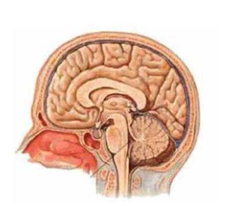 脑脓肿是什么引起的