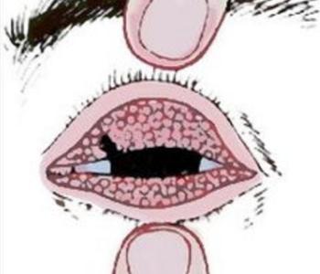什么是沙眼