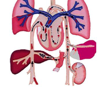 肺栓塞的治疗方法是什么