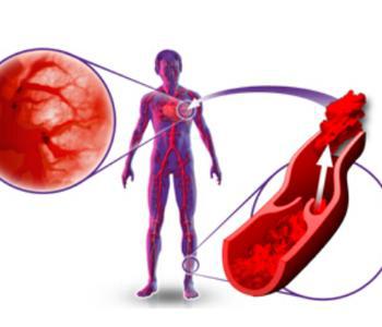 肺栓塞的临床表现是什么