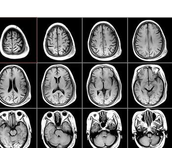 核磁共振检查的危害是真的吗
