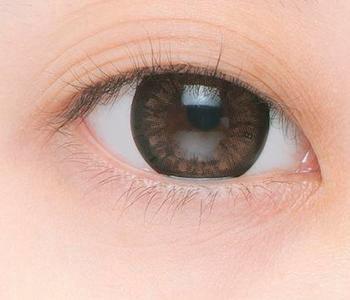 小儿眼睛红肿怎么办好啊