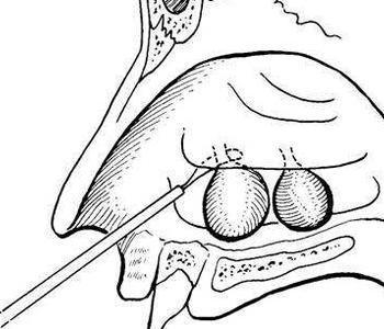 鼻息肉的形成原因是什么呢
