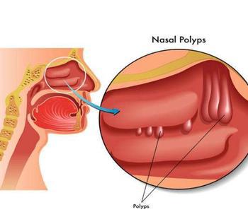 鼻窦鼻息肉是为什么