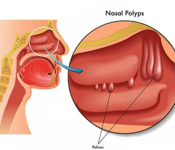 鼻息肉引起的原因有哪些