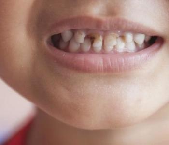 小孩子有虫牙的危害