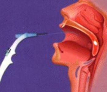 白血病性咽峡炎的症状有哪些