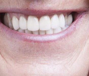 龋齿牙周炎的预防方法有哪些