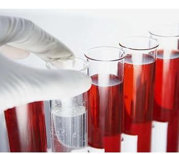 女性血尿怎么治疗