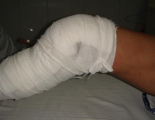 骨科病人的护理