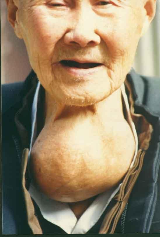 单纯性甲状腺肿日常护理应注意什么?