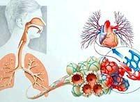 肺水肿要怎么来治疗?