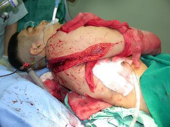 胸部创伤的紧急处理