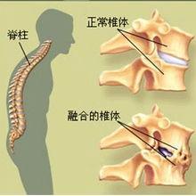 血清阴性脊柱关节病有什么危害和并发症吗?