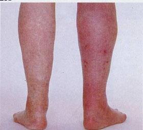 红斑肢痛症的治疗方法有哪些?