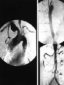 大动脉炎手术后在生活上要注意什么?