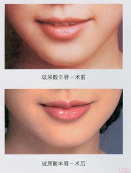 唇部整形手术后该多吃什么?