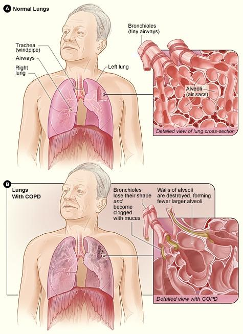 淫荡的性爱囹�a_慢性阻塞性肺疾病(chronicobstructivepulmonarydiseases,copd)是一组