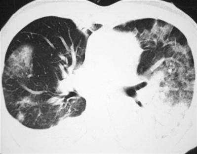 孩子患了小叶性肺炎怎么办