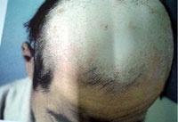 头皮糠疹的发病原因是什么?