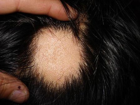 分享下瘢痕性脱发的治疗方法