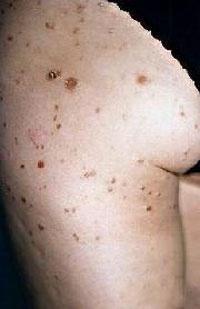 怎样做才能避免患上单纯糠疹?