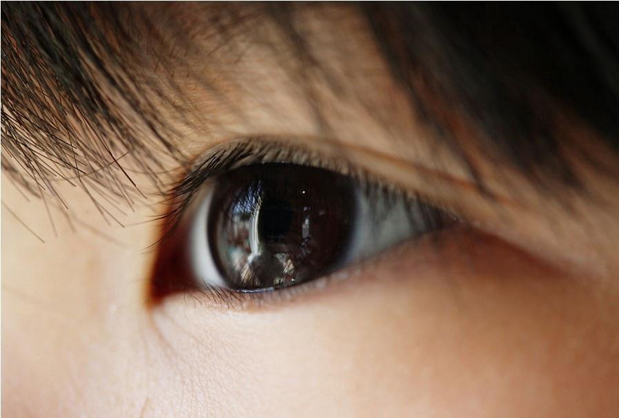 中国 眼睛/中医怎么治疗梅毒性巩膜炎