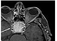 咽部脊索瘤的术前护理有哪些
