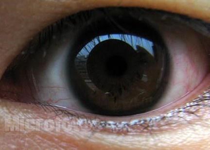 治疗 眼睑 如何 基底细胞癌/眼睑基底细胞癌如何治疗