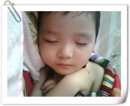 小儿类风湿病有哪些症状表现