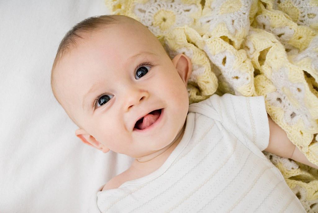 新生儿脐炎怎么办