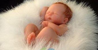 得了新生儿脐疝怎么办