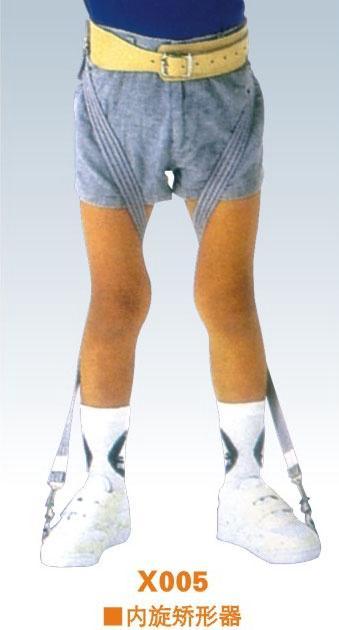 得了X型腿怎么办