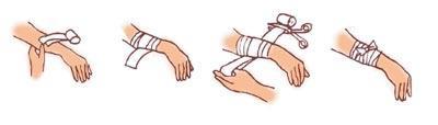如何进行手外伤的现场急救