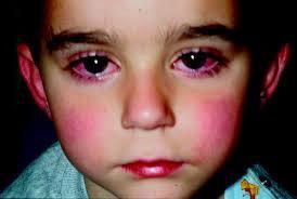 小儿咽-结合膜热是怎么治疗的
