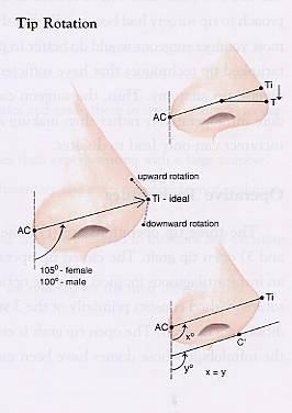 如何预防鼻中隔穿孔