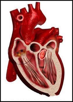 怎样治疗感染性心内膜炎肾损害