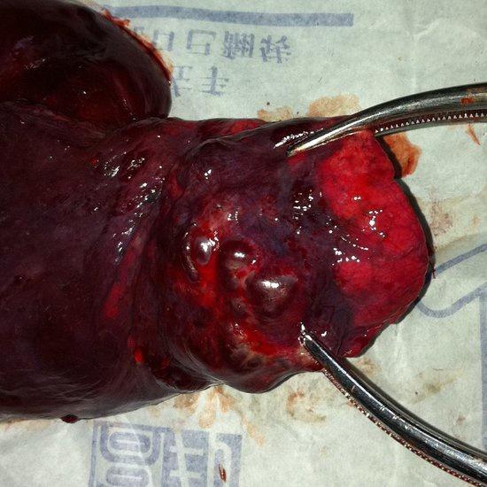 先天性肺动静脉瘘如何治疗