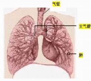 小儿肺泡性蛋白沉积症怎么治疗