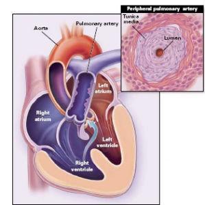 先天性主动脉瓣窦动脉瘤破裂该如何治疗