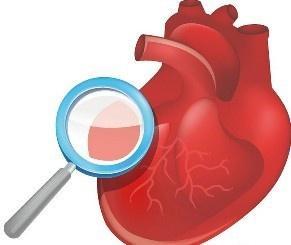 怎么治疗心肌梗塞并发二尖瓣关闭不全